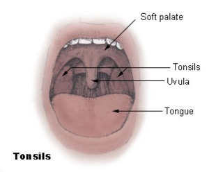 Tonsils for Tonsil Stones